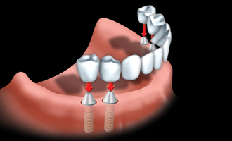 Implant bridges can be used when all your teeth are missing.