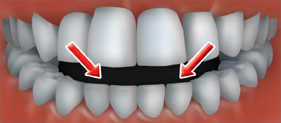An open bite occurs when the back teeth are together and there is an opening between the lower and upper front teeth.