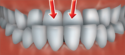 An underbite occurs when the upper teeth fit inside the arch of the lower teeth.