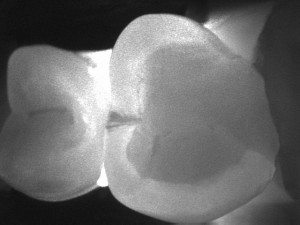 Image 25 Decay (cavity) present on the mesial (front) portion of the tooth - dark area that shows up